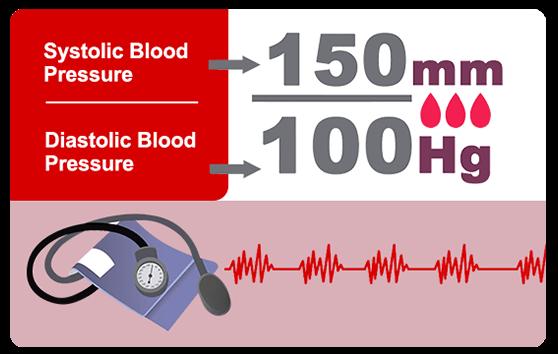 Blood pressure measure hypertension